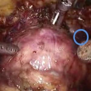 Prostatectomia Laparoscopica dopo TURP