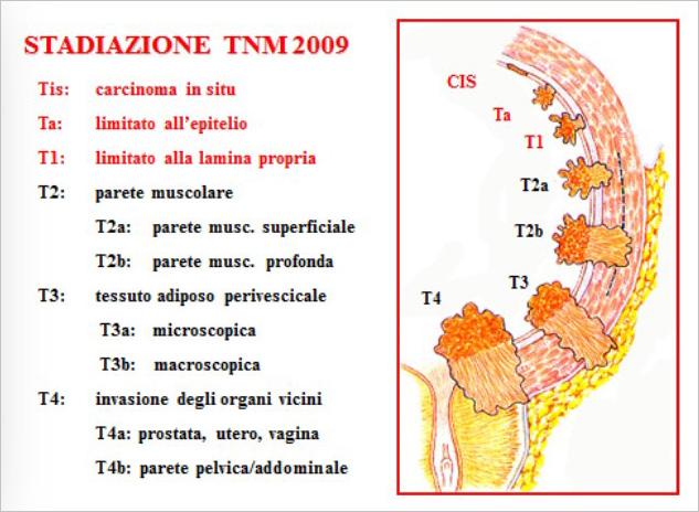 carcinoma_vescicale